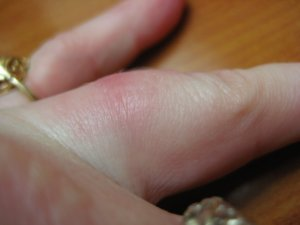Help Swollen Finger Caused By Ring