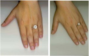 Spread Of A Ritani Endless Love Ring