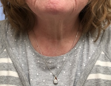 At home on her neck!